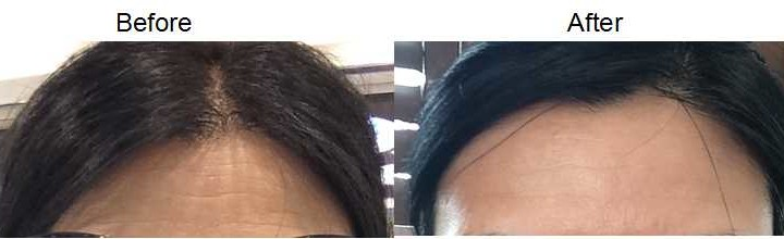 Retinol before and after