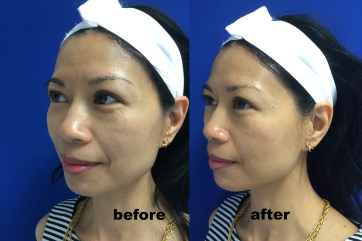 Before After HydraFacial 2