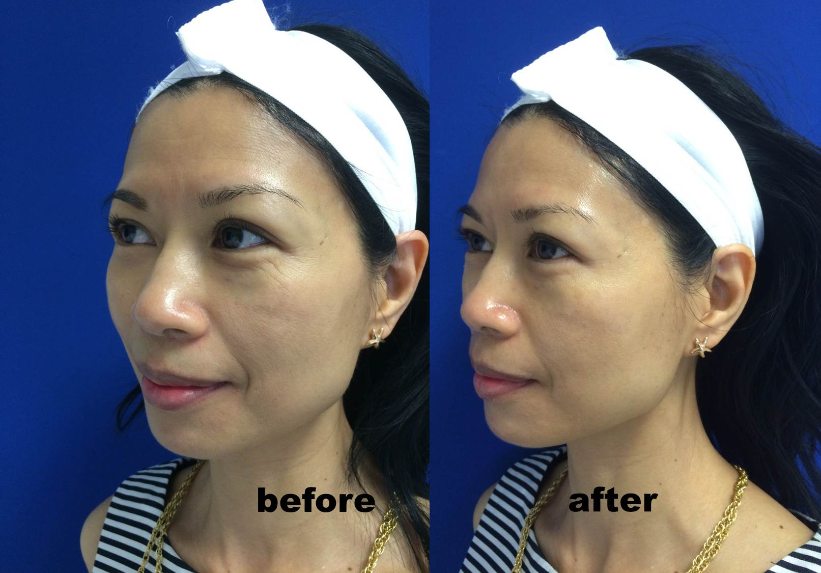 HydraFacial MD® Before And After